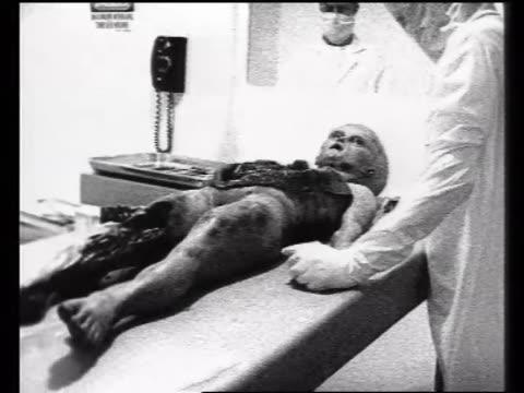 Alien's organs removed