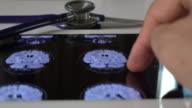 CAT and MRI Scan