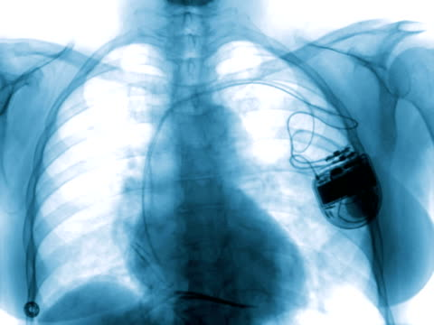 Angiography of the chest of a 75-year-old heart failure patient wearing a pacemaker/defibrillator.