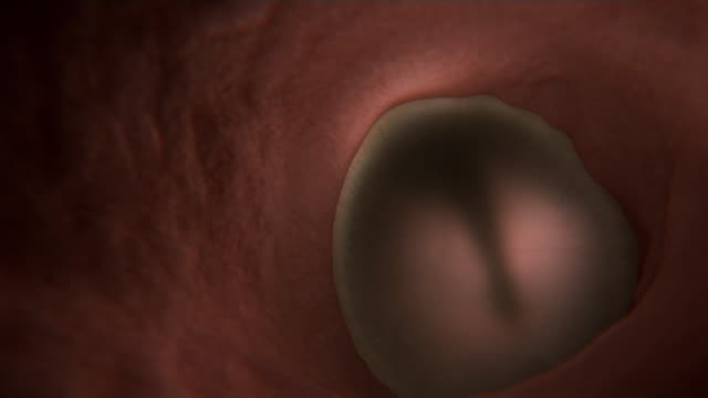 Animated sequence showing the eardrum sending vibrations to the anvil and stirrup bones in the human ear.