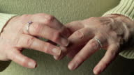 Arthritic hands, close-up
