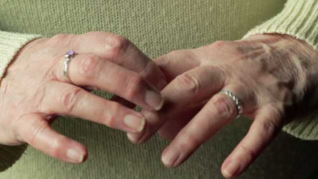 Arthritic hands, close-up