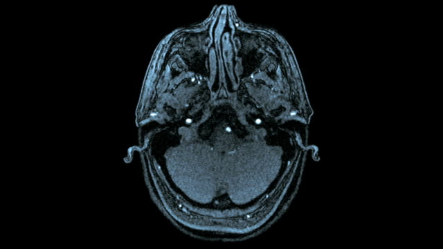 Axial MRI Scan Of Human Brain (Blue Toned)