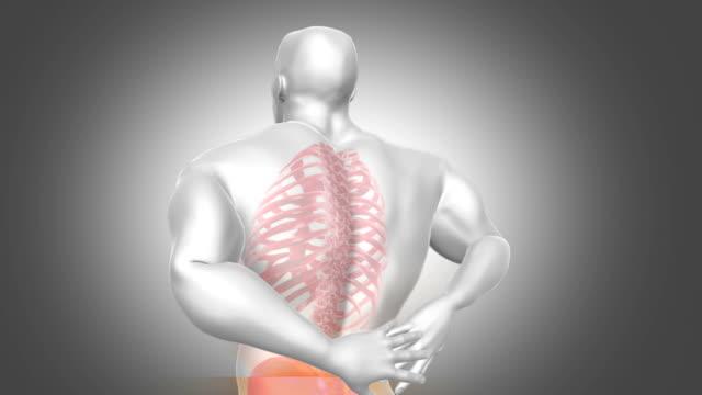 Back Pain Animation