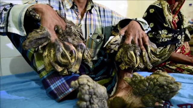 A Bangladeshi father dubbed the Tree Man due to the massive bark like warts on his hands and feet will finally have surgery to remove the growths...