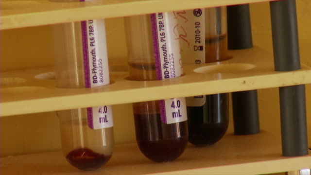 CU Blood filled test tubes at doctors without borders facilities / Juba, Central Equatoria, Sudan
