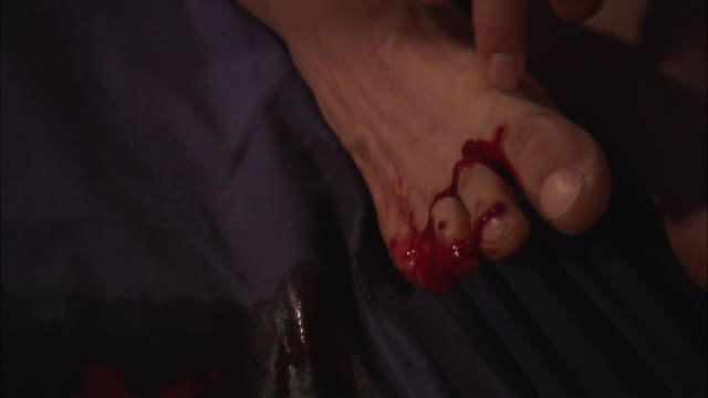 Blood flows from a bat bite between a man's toes.