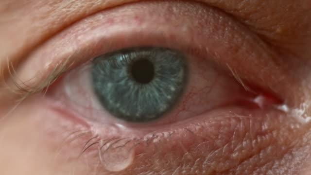 ECU Blue eye brimming with tears