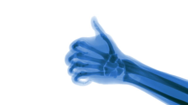 Blue X-ray thumbs up in slow motion