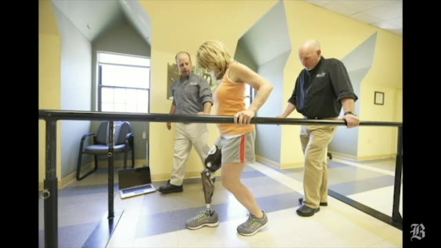 Boston Marathon bombing survivor Roseann Sdoia is fitted with a prosthetic leg with microprocessors made by Next Step Bionics Prosthetics Video by...