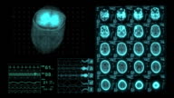 Brain CAT Scan Medical XRay Monitor Display