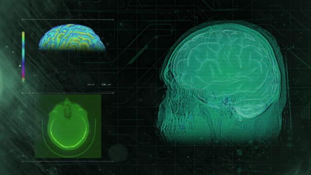 Brain MRI Scan 4h