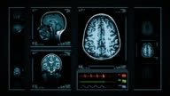 Brain MRI Scan. Blue. Medical Background. Head x-ray. EKG. Loopable.