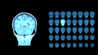 Brain MRI scan-a diagnostic method