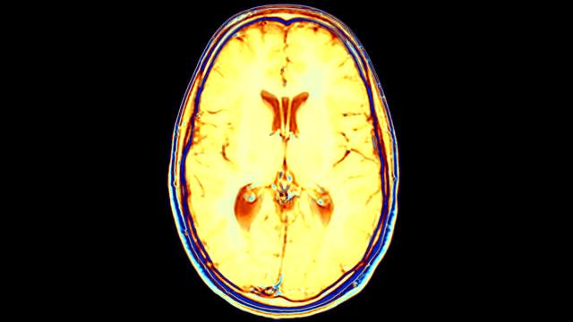 'Brain, MRI scans'