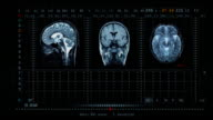 Brain MRT scan