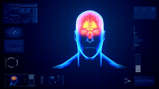 Brain Scan Monitor