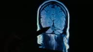 Brain Scan MRI 4k