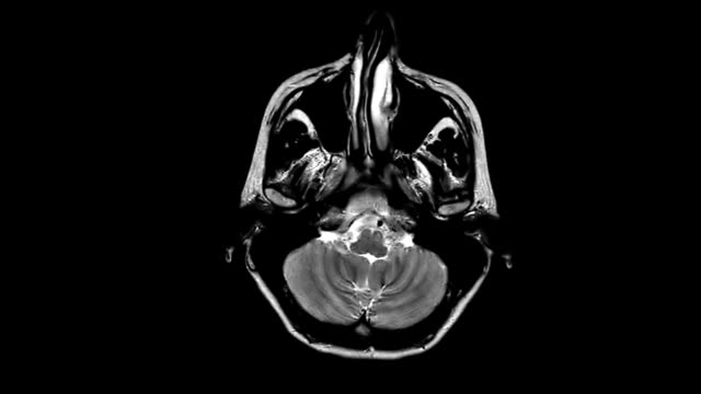 MRI brain scan,four angles