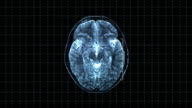 Brain top MRT scan
