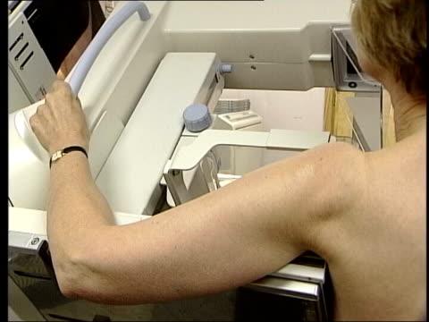 Breast cancer warning ITN Woman having breast screening Xray Technician looking at breast Xrays on light box