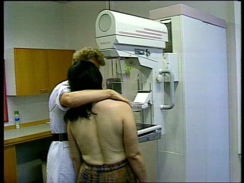 Brest cancer screening mix up LIB Devon Exeter Royal Devon amp Exeter Hospital BV radiographer assisting patient having mammogram radiographer...
