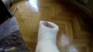 broken leg in a cast
