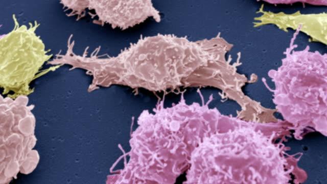 'Cancer cells, SEM'