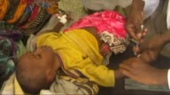 Cases of cholera and acute diarrhoea are on the rise in southern Somalia and require a rapid response say the World Health Organisation and the UN...