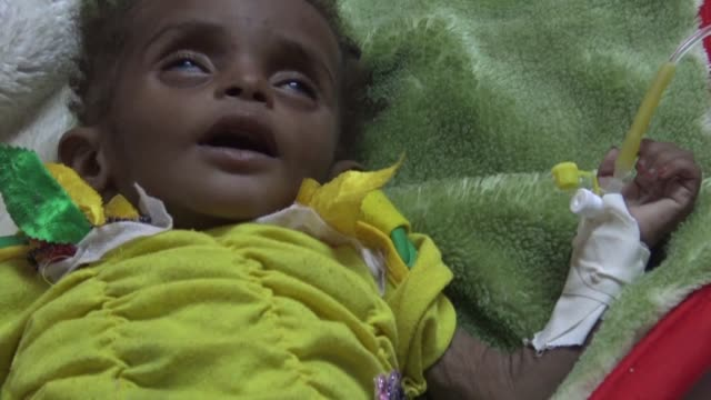 A cholera outbreak in war torn Yemen has now surpassed 300000 suspected cases and claimed more than 1600 lives the Red Cross said Monday