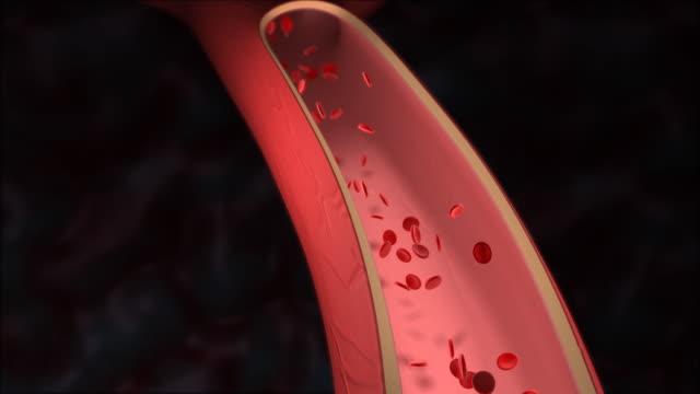 Colesterolo ostruzione dell'arteria