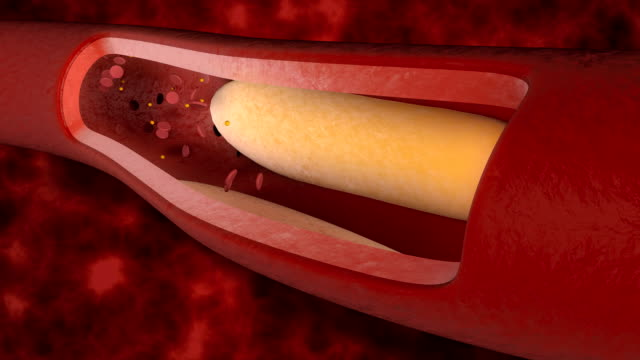 Cholesterol in the blood vessels