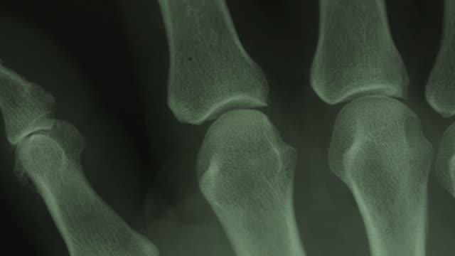 Close pan across an X-ray of human finger bones.
