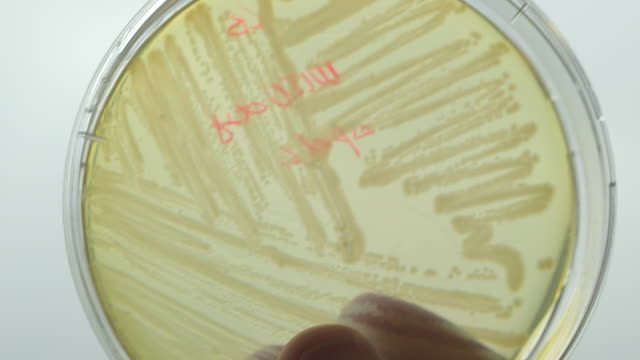 Close shot of a person holding a culture growing in a petri dish.