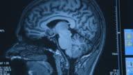Close shot of an MRI scan on a human brain.