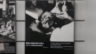 Close up at the Atomic Bomb Museum Nagasaki a showcase with several photographs displaying injured citizens