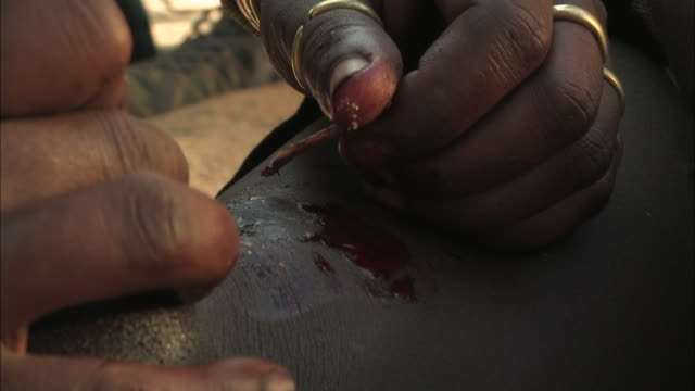 Close Up hand-held - A tribal woman uses sharp blades and other tools to perform ritual scarring. / Ethiopia