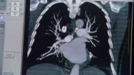Close up image on monitor changing as CT scan of heart and lungs is performed