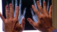 close up man putting his hands over x-ray of hands + making fists