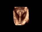 IUD contraceptive.