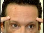 Botox warning CMS Maurizio Viele setup showing where he has had Botox on his forehead and