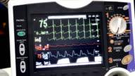 Defibrilator monitor (HD)