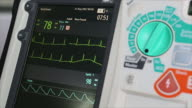 Defibrillation is a treatment
