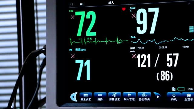 Defibrillator display heart pulse in hospital ICU room,real time.