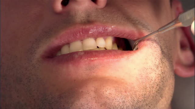 dentist examines man's mouth / scales teeth / dental assis