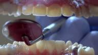 ECU, Dentist examining patient's teeth, Ann Arbor, Michigan, USA