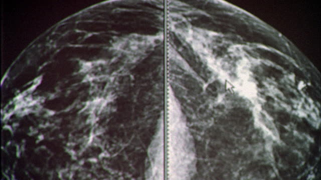 Diagnostic mammogram on a computer screen, the curser highlights cancer tumor.
