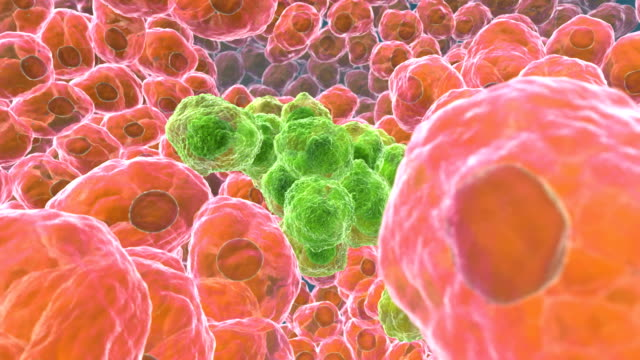 Discovery of cancer cells (green) surrounded by normal cells (pink). Nuclei (dark centres) are seen in the cells. Cancer cells divide rapidly in a chaotic manner. The cells may clump to form tumours that invade and destroy surrounding tissues
