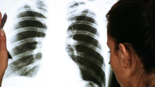 HD: Doctor Examining an x-ray image