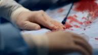 Doctor prepare equipment for percutaneous  tranluminal coronary angioplasty